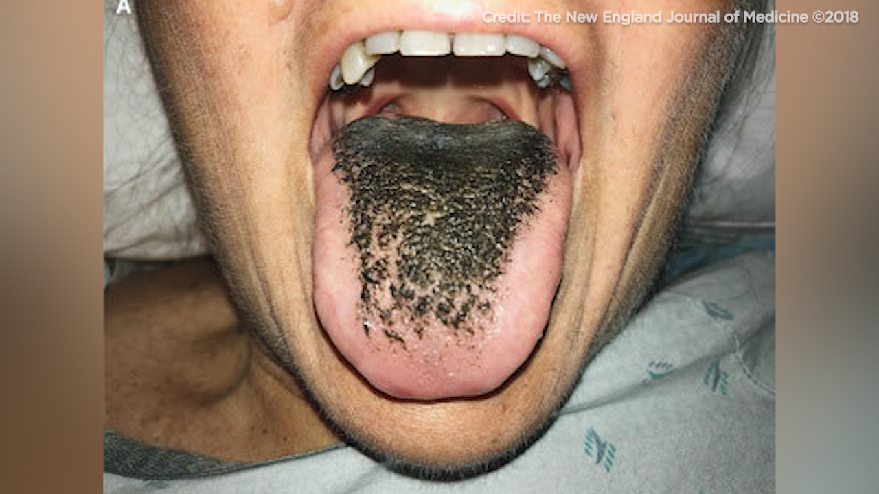 This image shows a woman's blackened tongue.