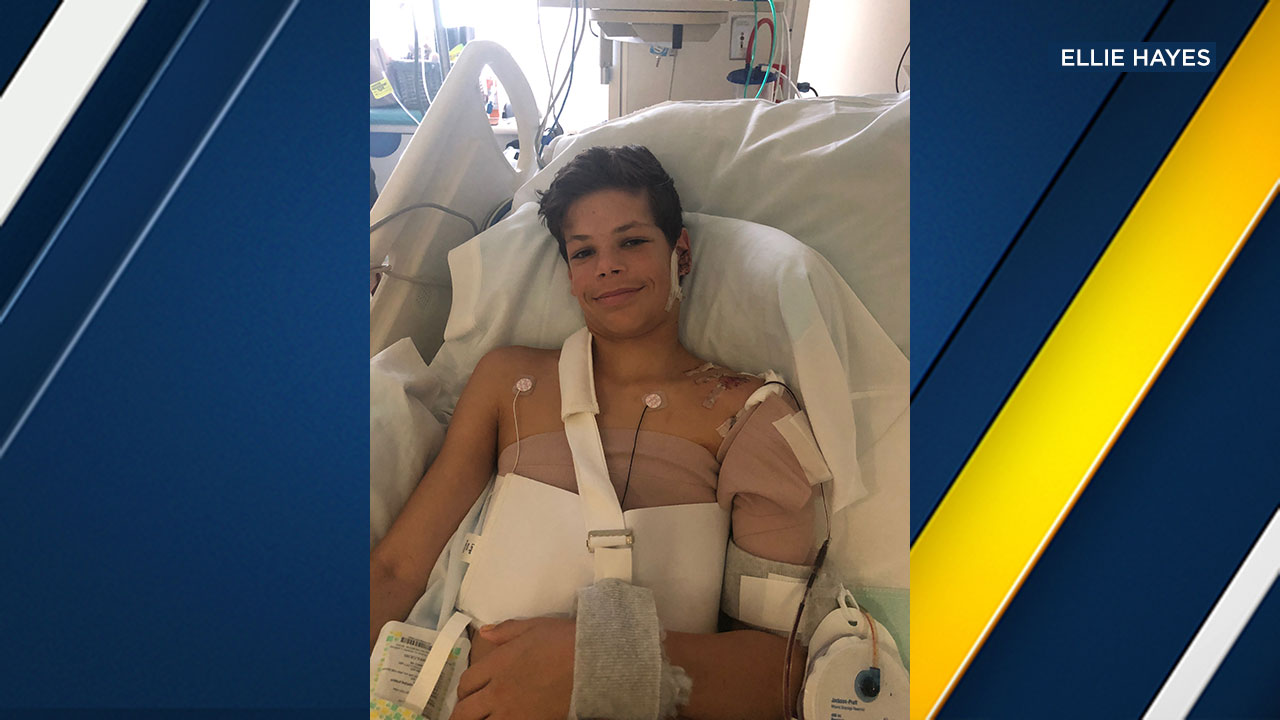 Keane Webre-Hayes, 13, was attacked by a shark in the San Diego area on Sept. 29, 2018.
