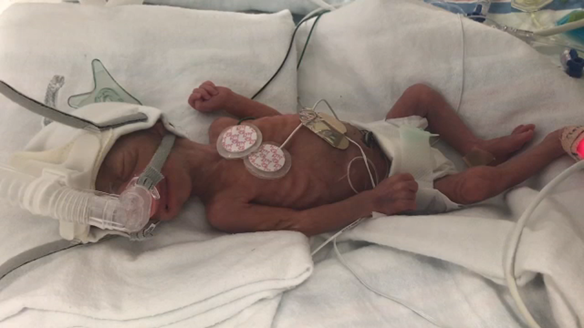 Rodriguez Was Born 13 Weeks Premature And At The Time Mom Jennifer Pena De Mena Received An Emergency C Section She Size Of Average Adults
