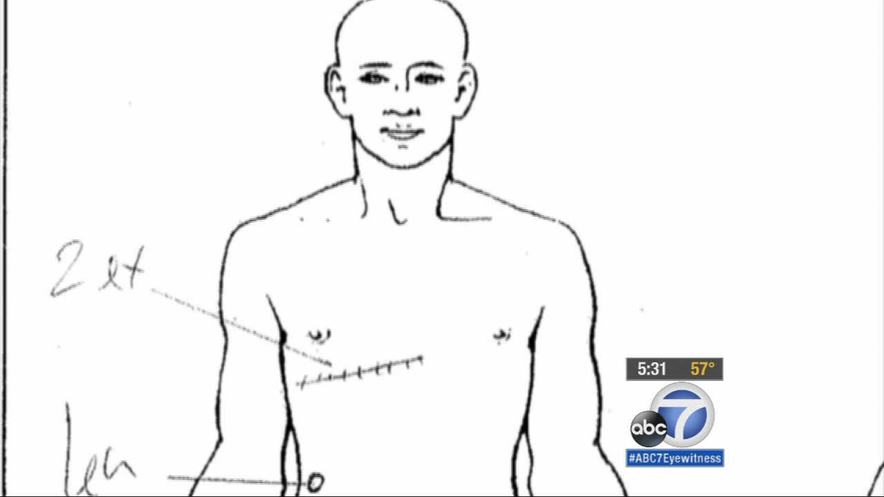 Eyewitness News spoke to an expert in police procedures and a pathologist following the release of Ezell Ford's autopsy report.