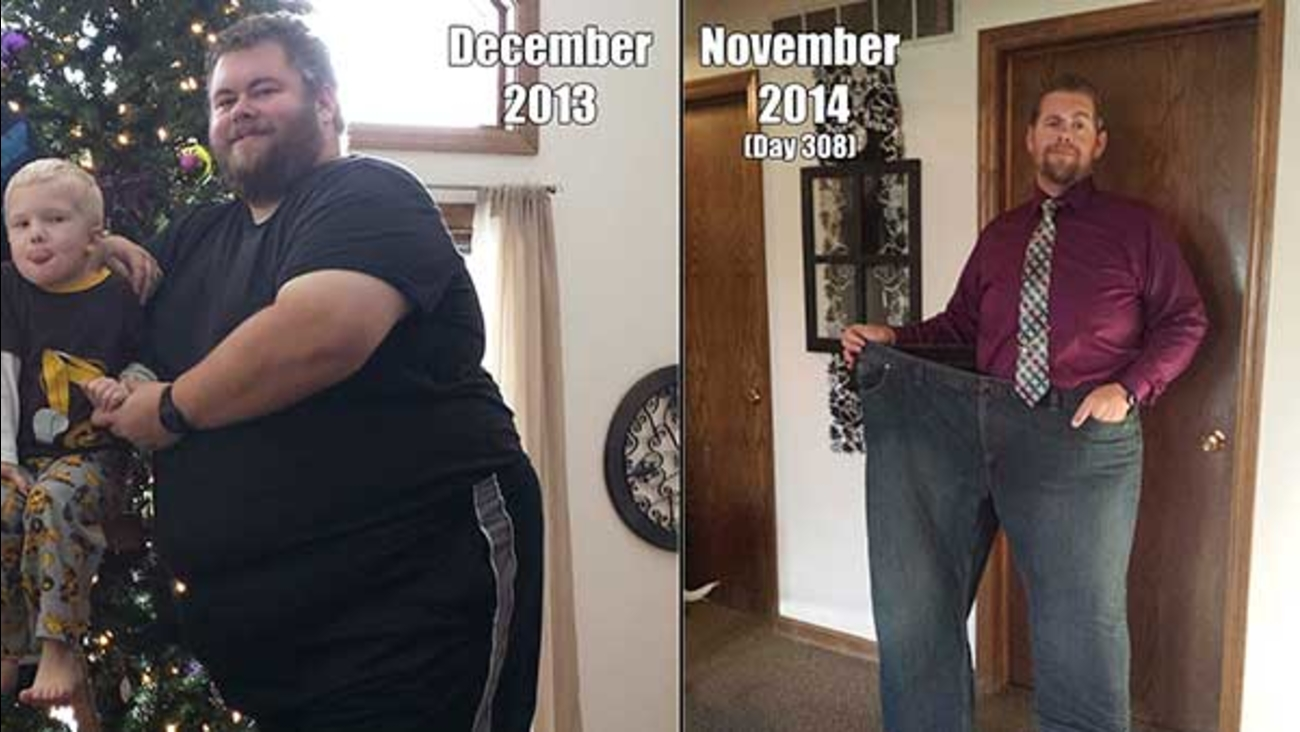Man S Successful Weight Loss Journey Started On New Year S Day 2014