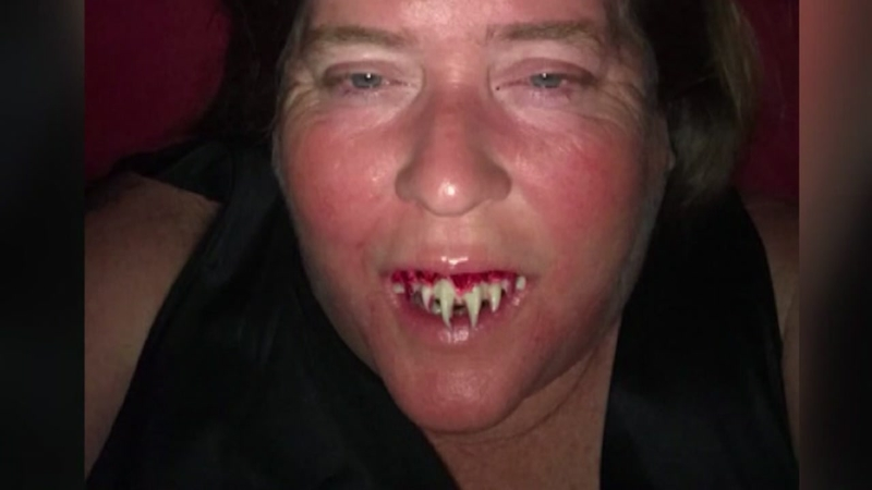 Woman with Zombie teeth stuck