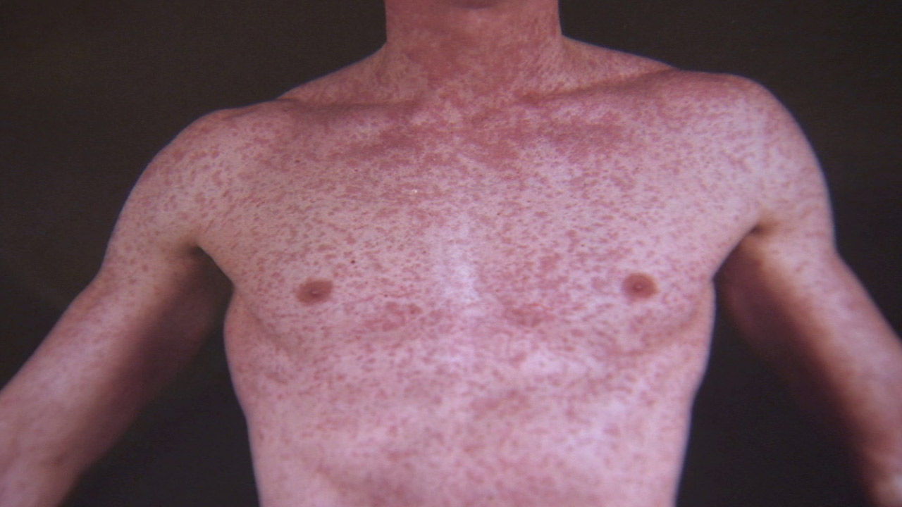 This undated file photo shows a measles outbreak on a young boy's body.