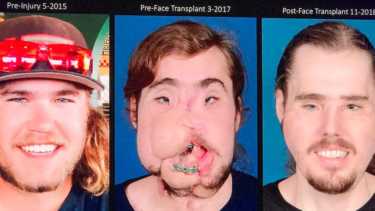 cameron underwood face transplant