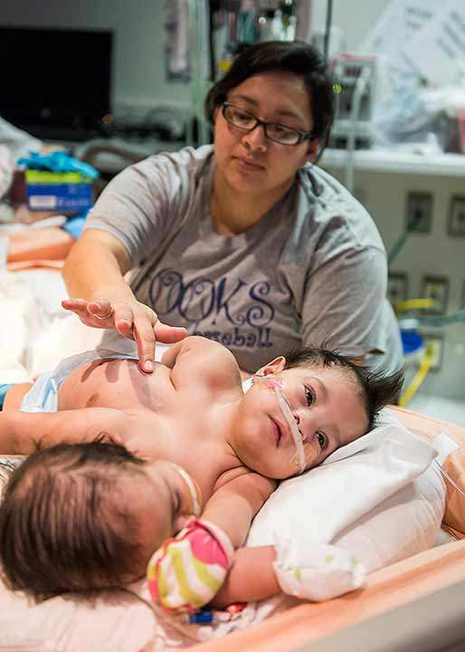 Conjoined Twins Born At Tch Abc13 Com