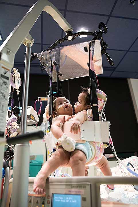 "<div class=""meta image-caption""><div class=""origin-logo origin-image ""><span></span></div><span class=""caption-text"">Conjoined twins Hope and Faith Mata (Allen Kramer for Texas Children's Hospital)</span></div>"
