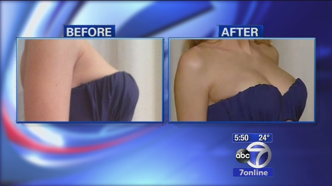 Breast implants long island cost