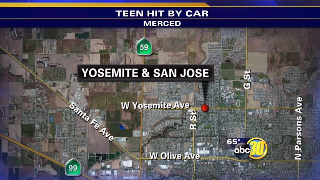 Woman, 19, struck by car in Merced