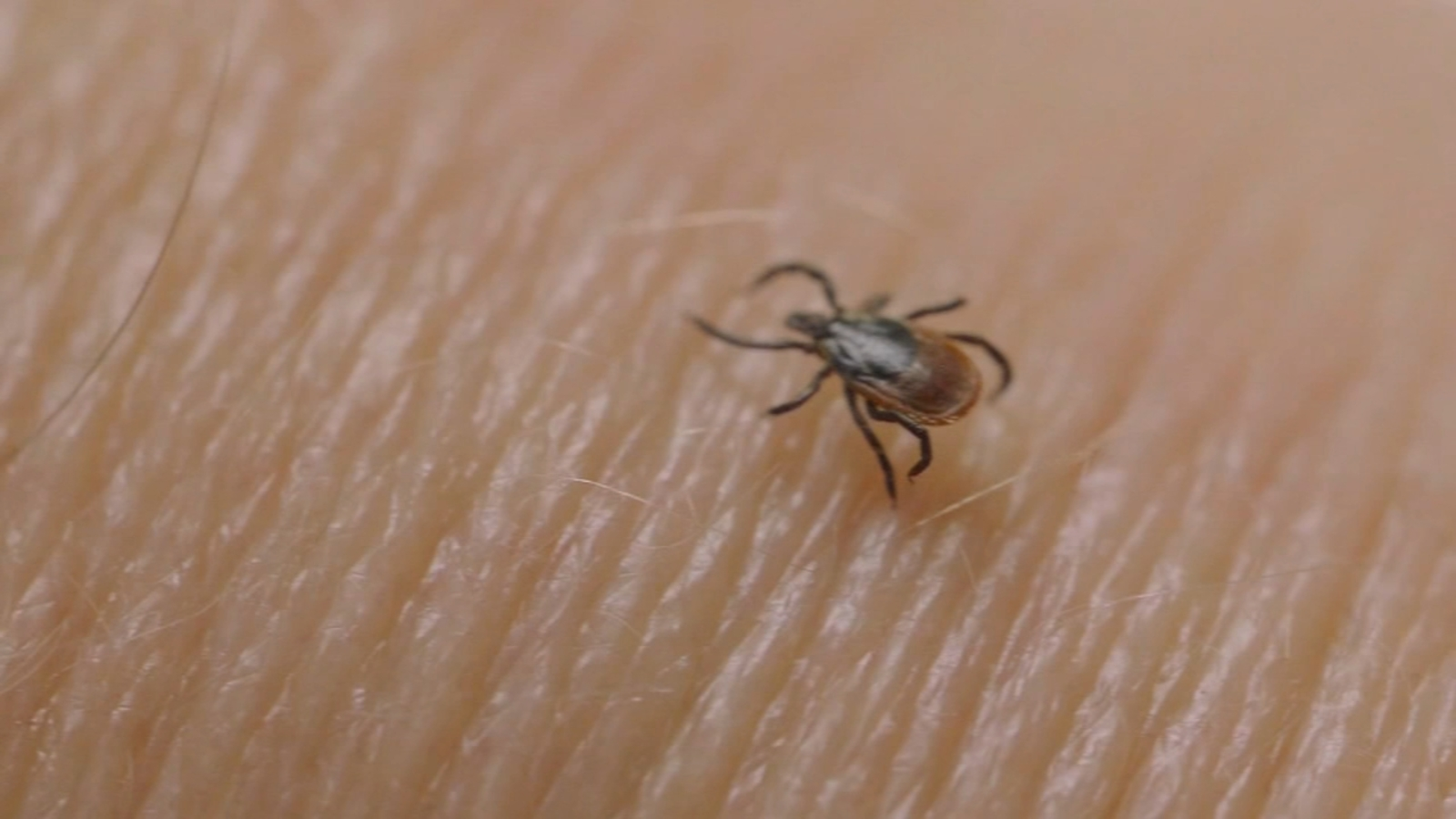 Lyme disease: Pennsylvania to conduct 5-year study of ...