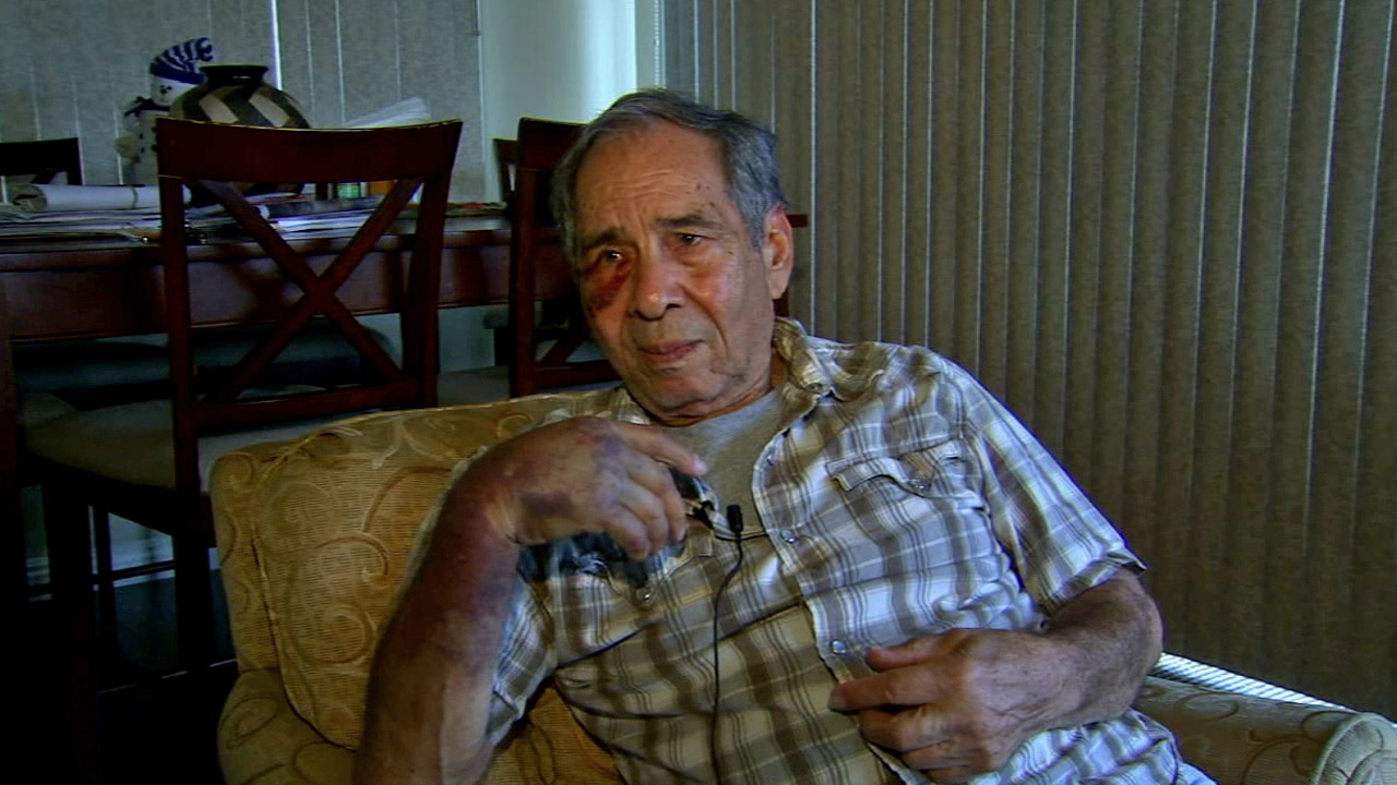 Raul Fonseca, 79, was badly beaten and knocked unconscious by a suspect while he was trying to use a Bank of America ATM in Temple City Saturday, Feb. 14, 2015.