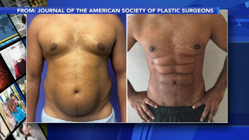New procedure uses foam to sculpt belly fat into 6-pack abs