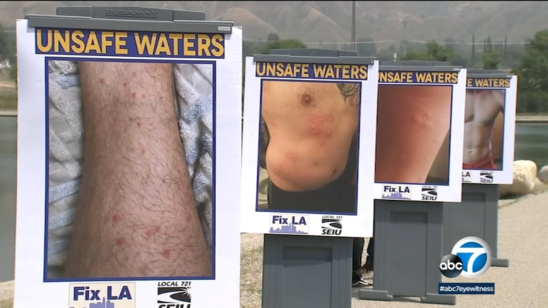 20 lifeguards say they developed rash from swimming at Hansen Dam Lake