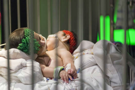 """<div class=""""meta image-caption""""><div class=""""origin-logo origin-image none""""><span>none</span></div><span class=""""caption-text"""">Photos from the separation of conjoined twins at Texas Children's Hospital (Photo/Allen S.Kramer TCH)</span></div>"""