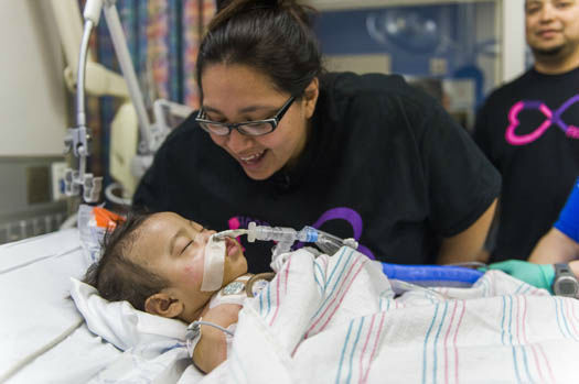 """<div class=""""meta image-caption""""><div class=""""origin-logo origin-image none""""><span>none</span></div><span class=""""caption-text"""">Photos from the separation of conjoined twins at Texas Children's Hospital (Photo/ Allen S.Kramer TCH)</span></div>"""