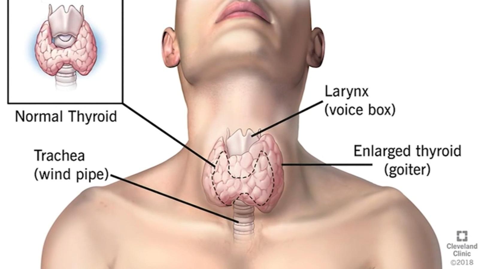 Health Watch Spotting Thyroid Problems Abc30 Fresno