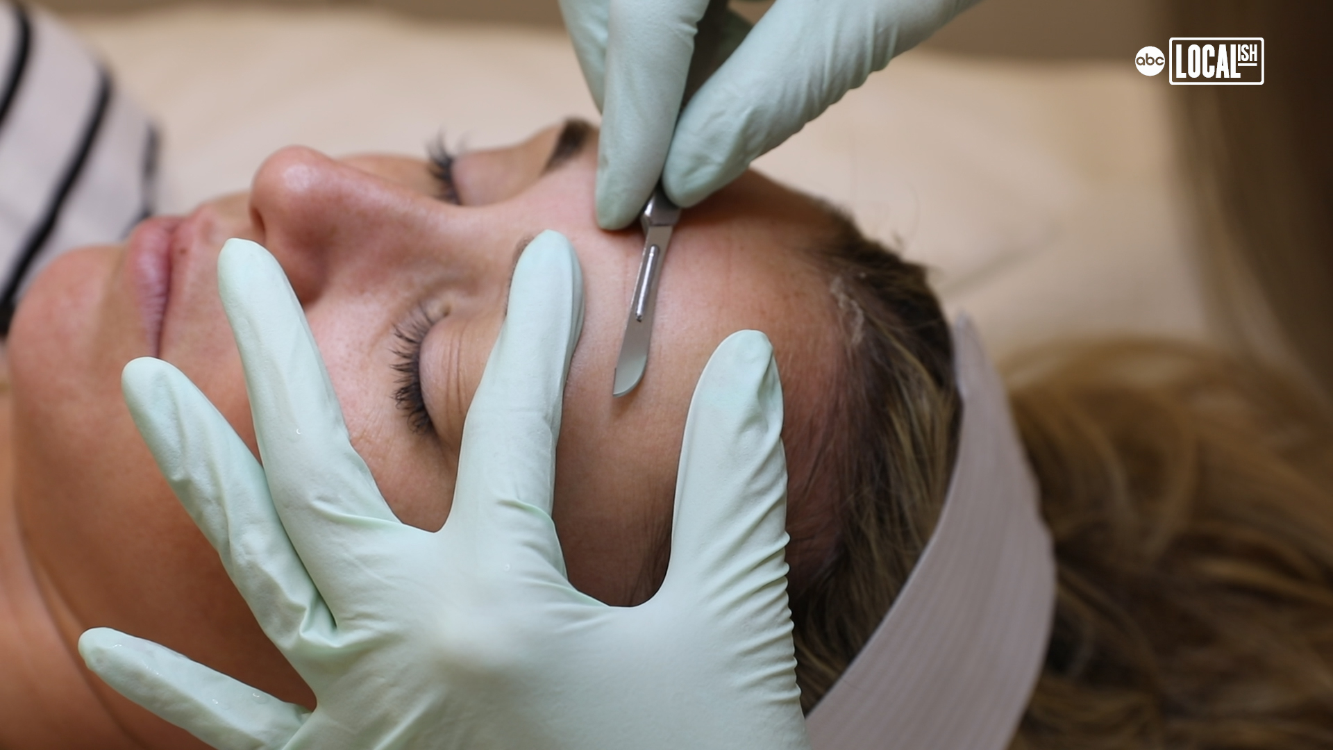New facelift procedure shaves years off with no downtime