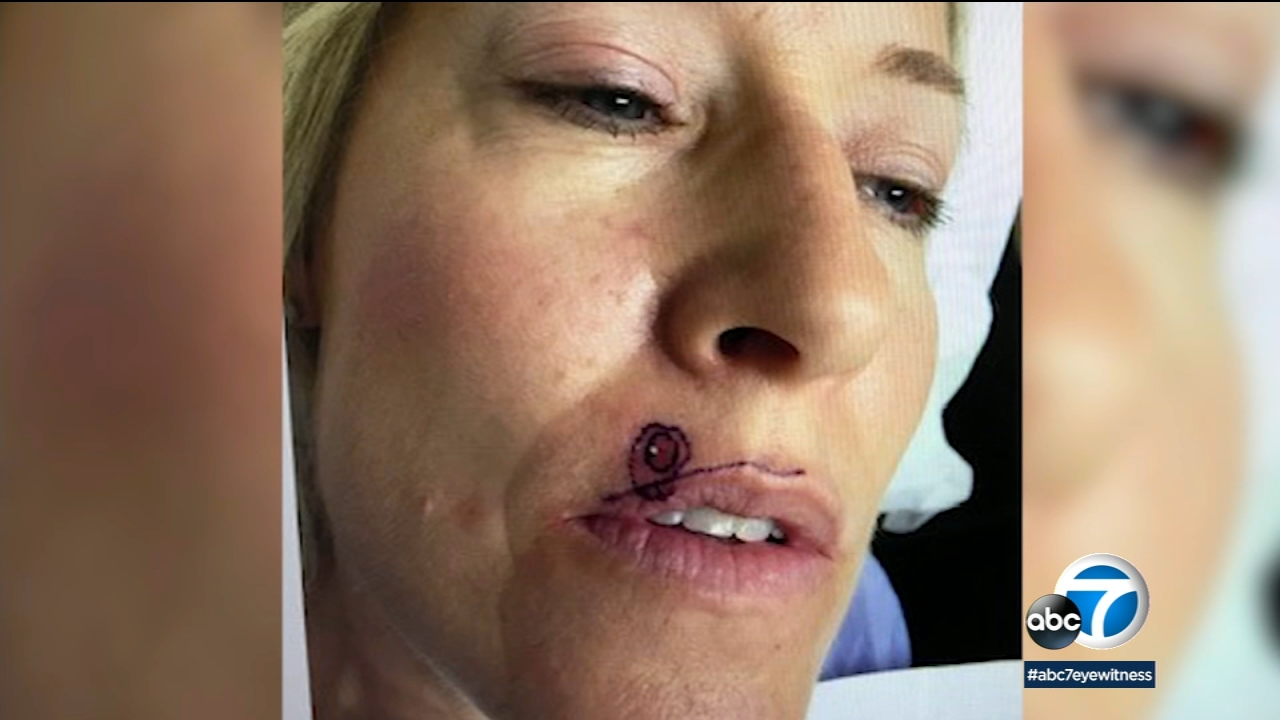 Skin Cancer Warning Arcadia Woman Says What Looked Like A Pimple Above Her Lip Turned Out To Be Skin Cancer Abc7 Los Angeles