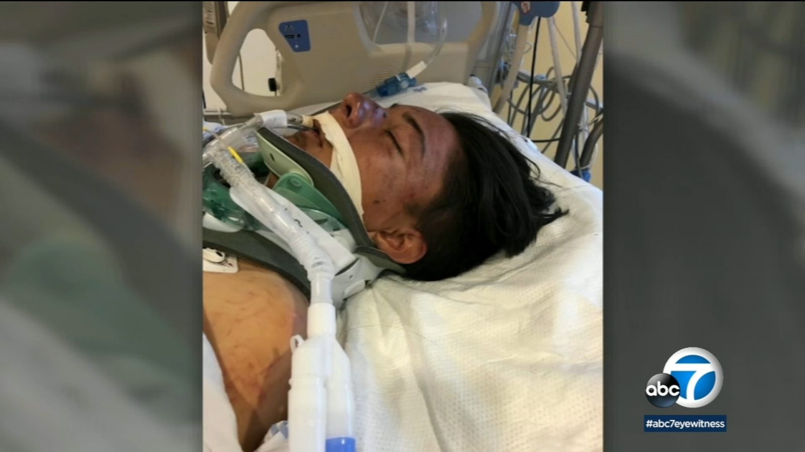 South LA hit-and-run: LAPD steps up efforts to find driver who severely injured teen