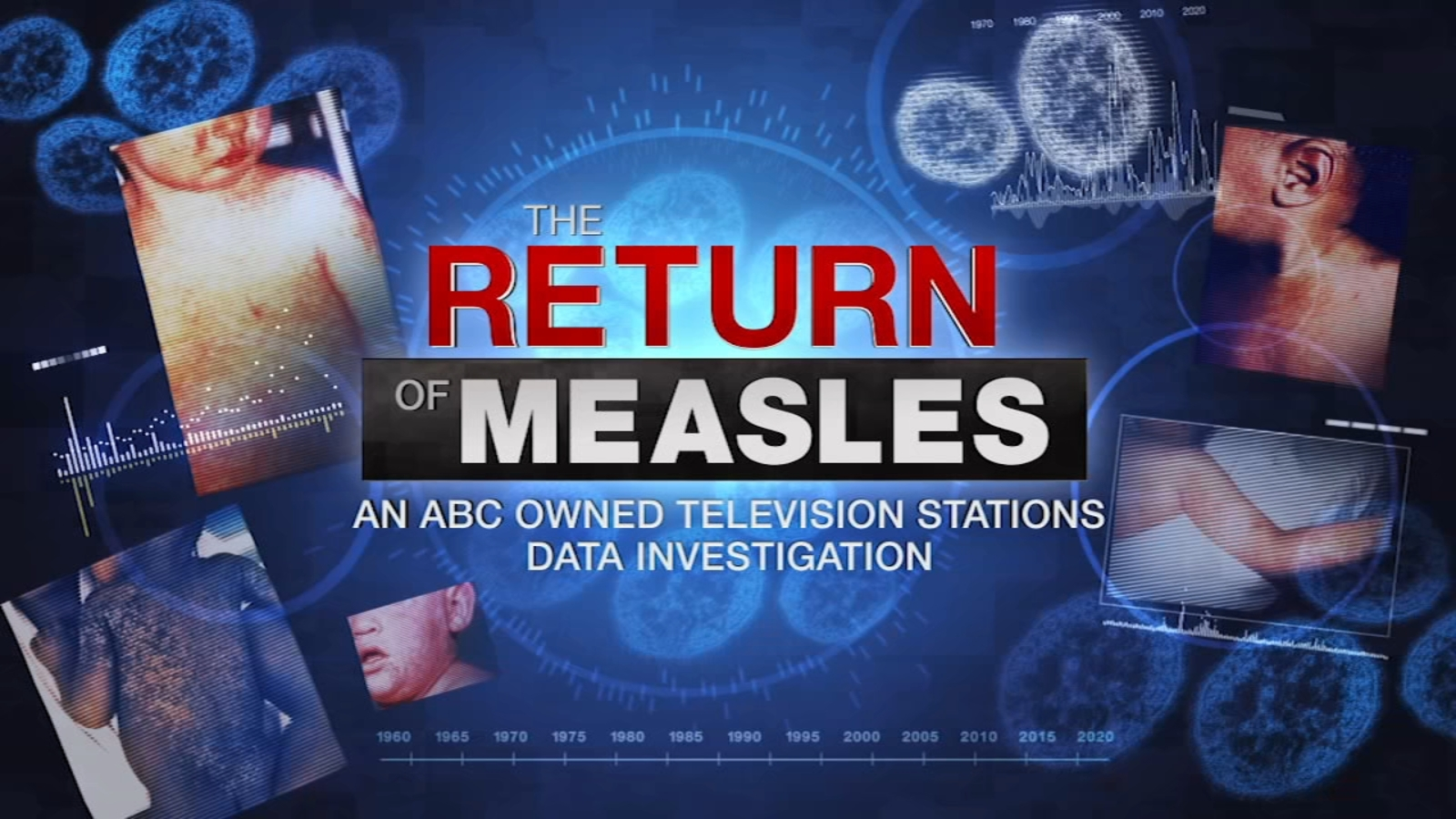 Measles Returns: Investigating Vaccination Rates