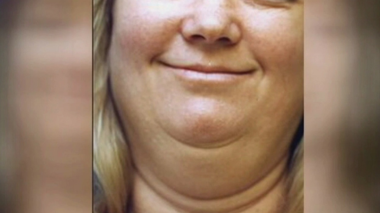 Double chin