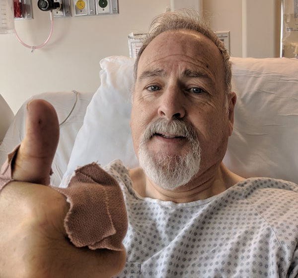 Brian Martin, 63, the owner of Delta Barbershop in Antioch, just out of surgery after he was hit and injured by a woman following a dispute over her son's haircut.