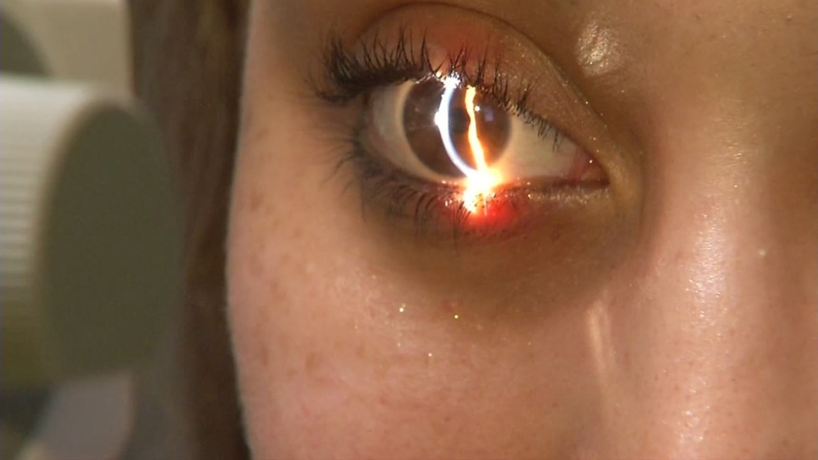 What Should You Know Before Getting Lasik Abc7 San Francisco