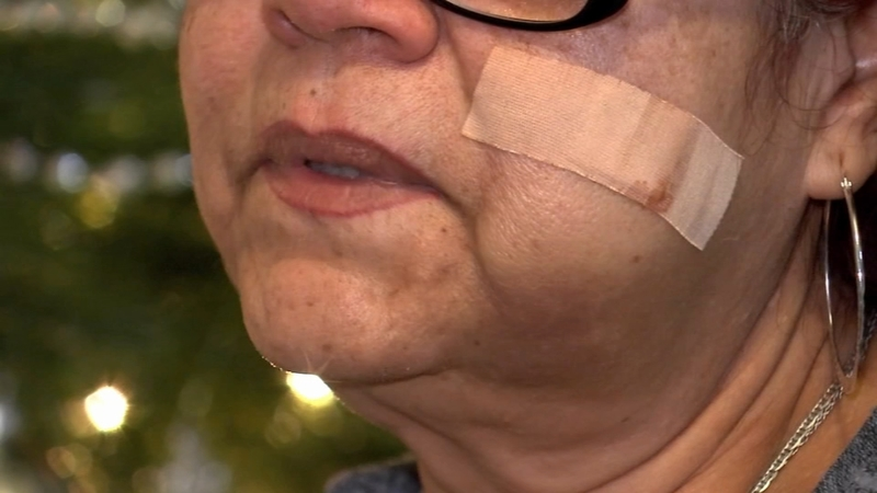 East Houston Freeway Shooting Woman Says Bullet Hit Her Cheek