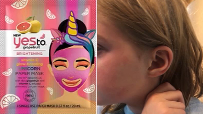 Says Mask Face Burned Woman Daughter's