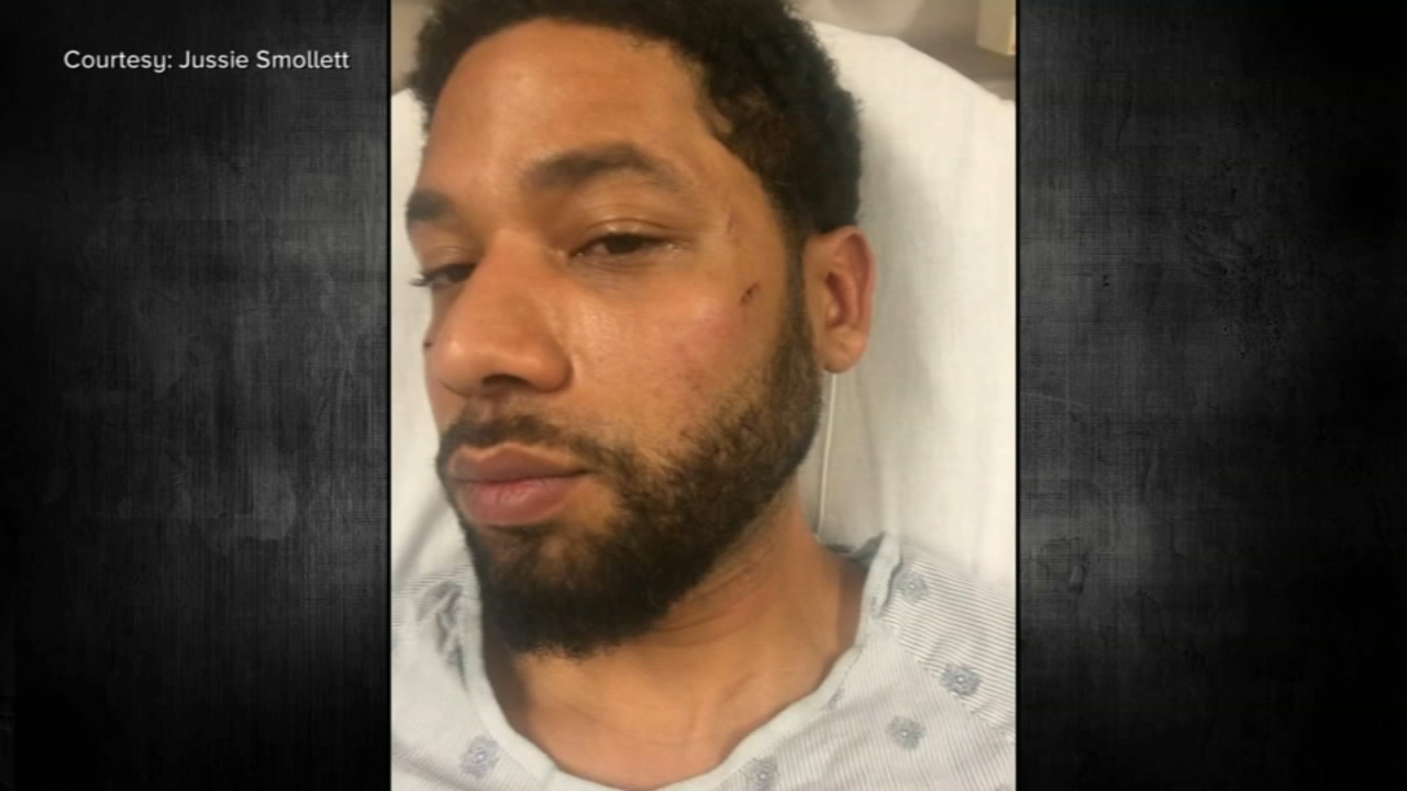 Jussie Smollett attack: 'Empire' actor claimed he was attacked in Chicago 1  year ago Wednesday; lawyers now looking for dirt on Eddie Johnson - ABC7  Chicago