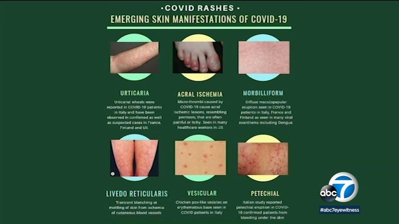 Coronavirus Symptoms Dermatology Organization Issues Guidance On
