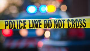 一妇女在加州Encino市接受非法提臀手术后死亡,两人被控谋杀。