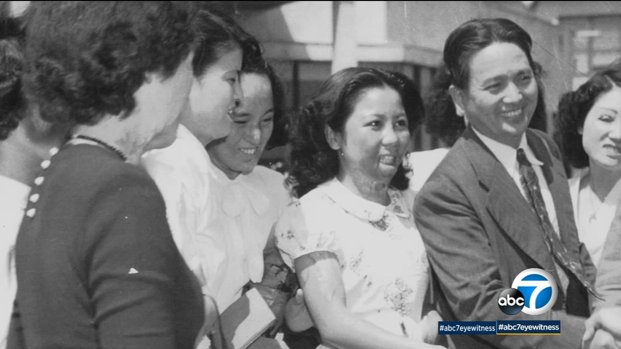 Ten years after the atomic bomb was dropped on Hiroshima, survivor Shigeko Sasamori was invited to America to receive surgery.