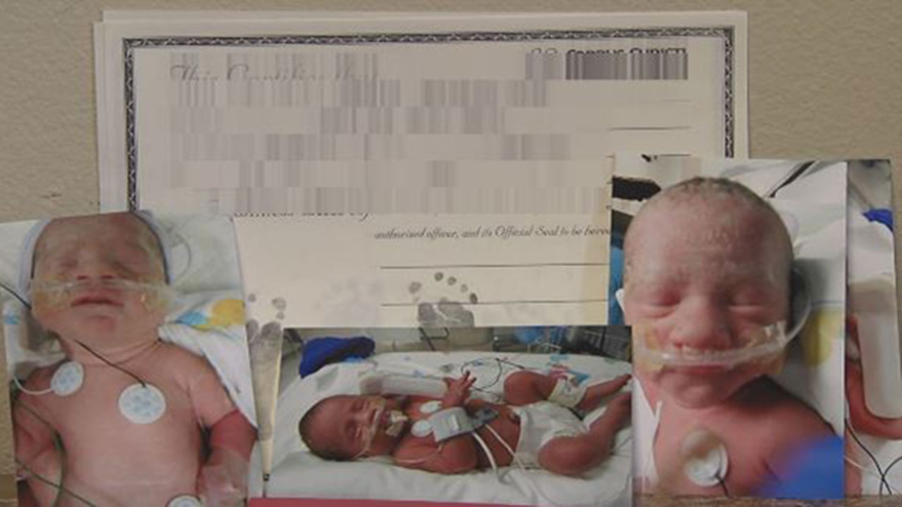 Identical Triplets Born In Texas Hospital Includes Set Of Conjoined