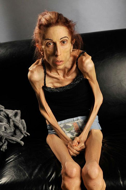 PHOTOS: California woman Rachael Farokh describes her