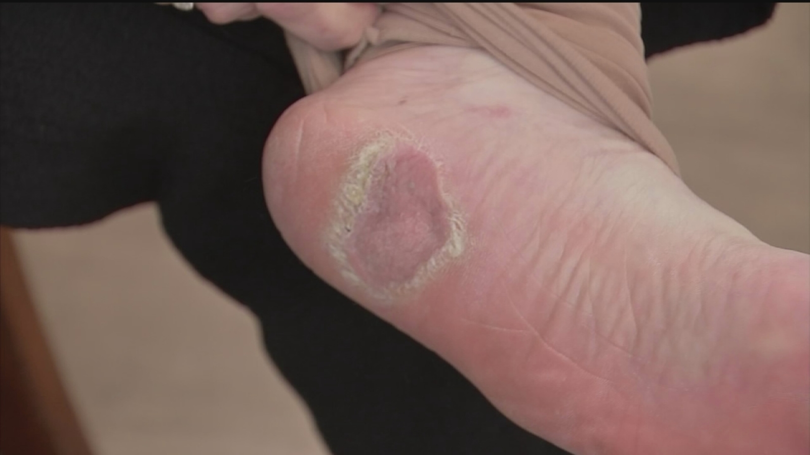 Melanoma Rates On The Rise Tips To Catch Skin Cancer In Early Stages Abc13 Houston