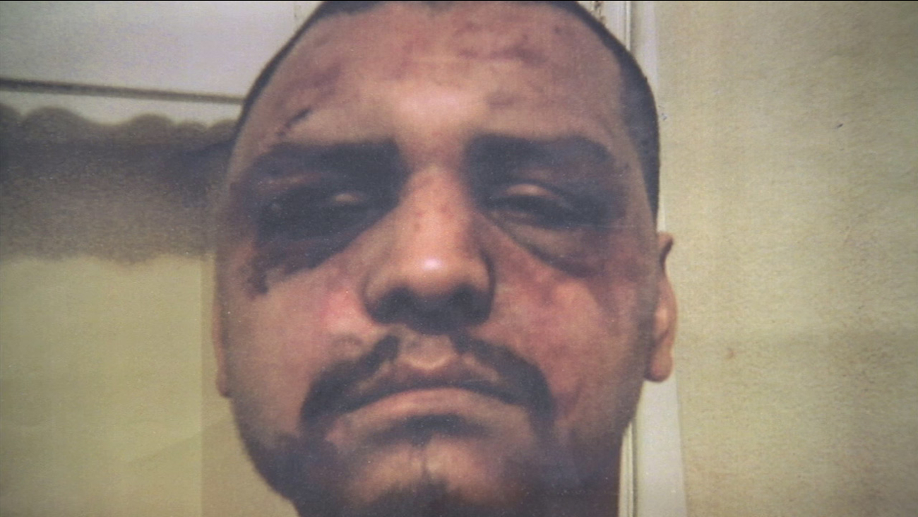Gabriel Carrillo is shown in a photo showing the bruises he sustained after Los Angeles County sheriff's deputies beat him while visiting the Men's Central Jail in 2011.