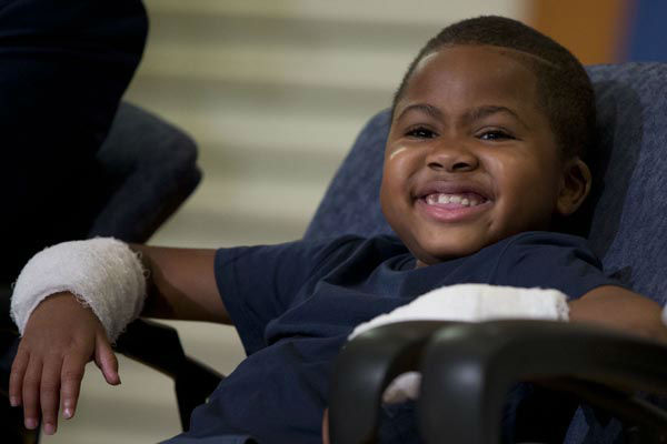"<div class=""meta image-caption""><div class=""origin-logo origin-image none""><span>none</span></div><span class=""caption-text"">Double-hand transplant recipient eight-year-old Zion Harvey smiles during a news conference Tuesday, July 28, 2015, at The Children's Hospital of Philadelphia (AP Photo/ Matt Rourke)</span></div>"