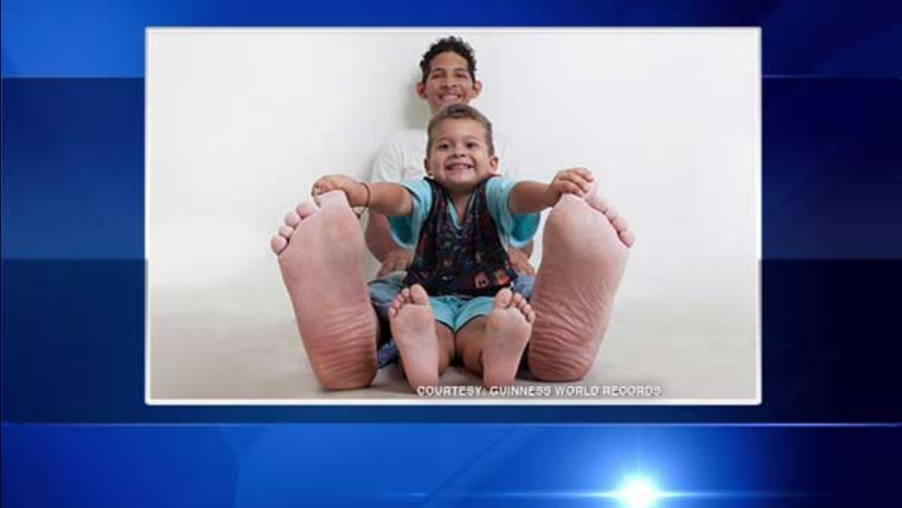 Jeison Orlando Rodriguez, of Venezuela, holds the Guinness World Record for the man with the largest feet.